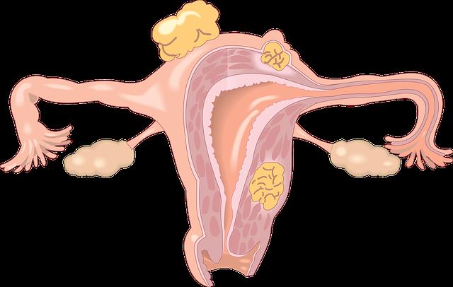 polipi endometriali