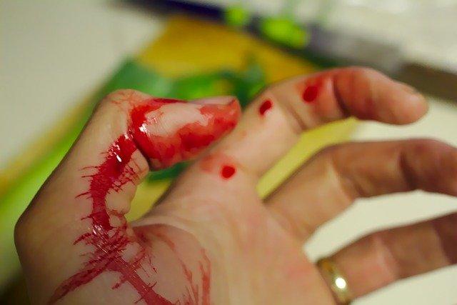 sangue dall'ano