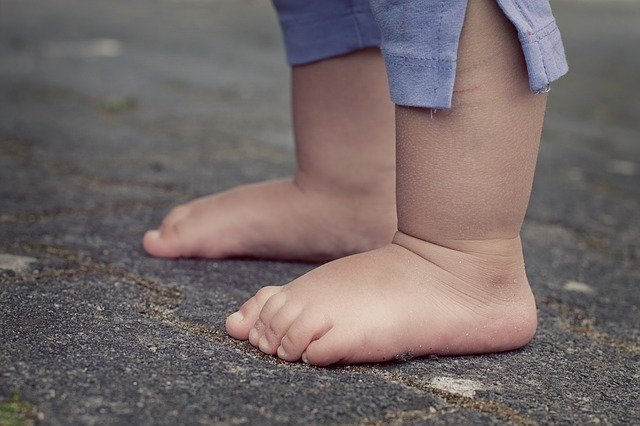 piedi piatti bambini